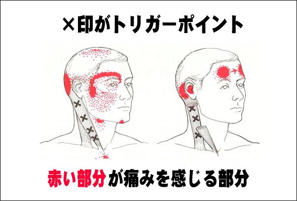 頭痛 TP.jpg