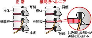 hernia-detail.jpg